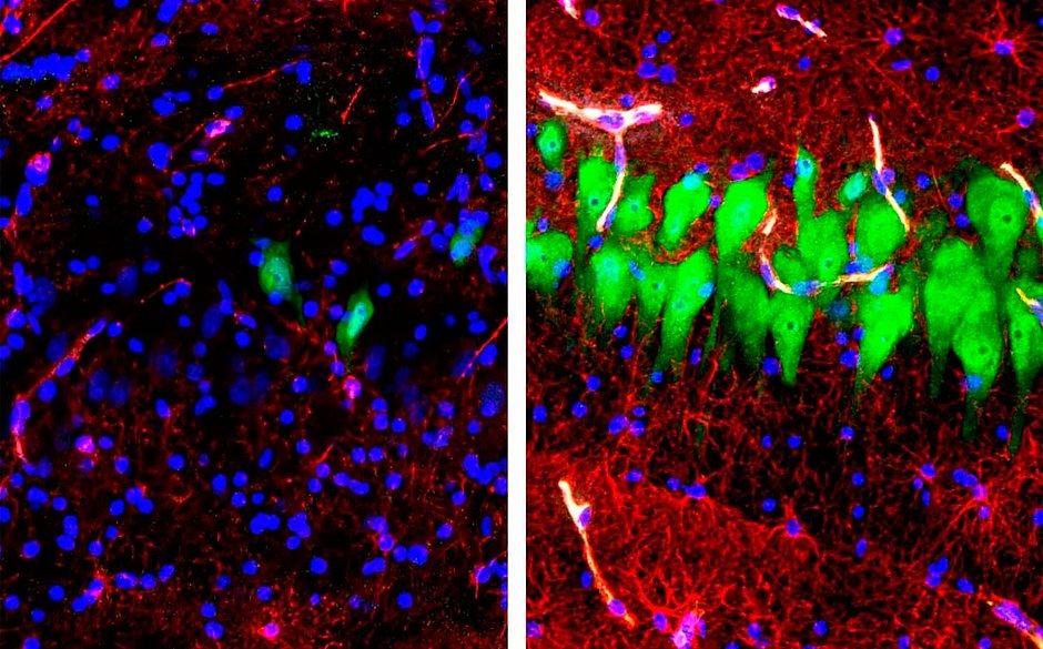 Cientistas restauram circulação de sangue no cérebro de porcos até horas depois de eles serem mortos