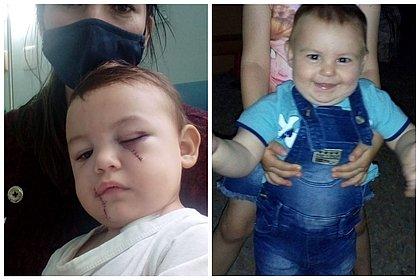 'Milagre estar vivo com tantos cortes', diz mãe de bebê que sobreviveu a ataque