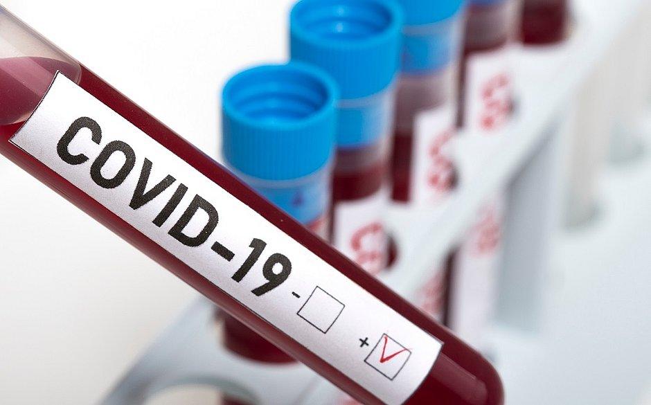 Países com vacina obrigatória para tuberculose têm menos mortes por covid-19