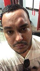 Rodrigo Matos levou uma garrafada na testa durante evento político nem Ribeira do Pombal