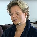 Deputada teve cinco fraturas no rosto
