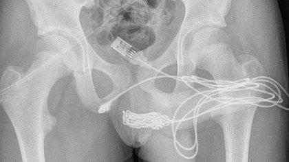 Adolescente é internado após inserir cabo USB no pênis para tentar medir órgão