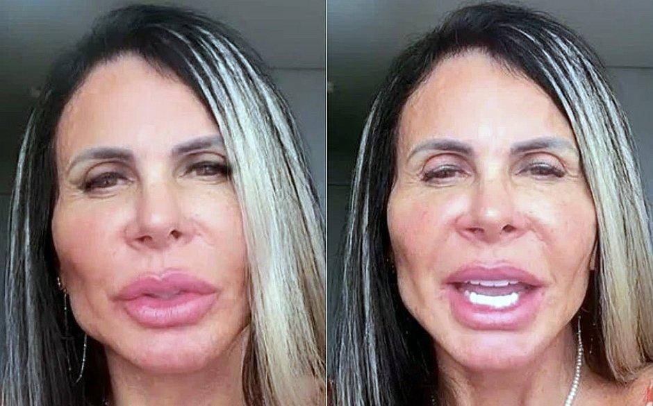 'Povinho recalcado', diz Gretchen ao rebater críticas a harmonização facial