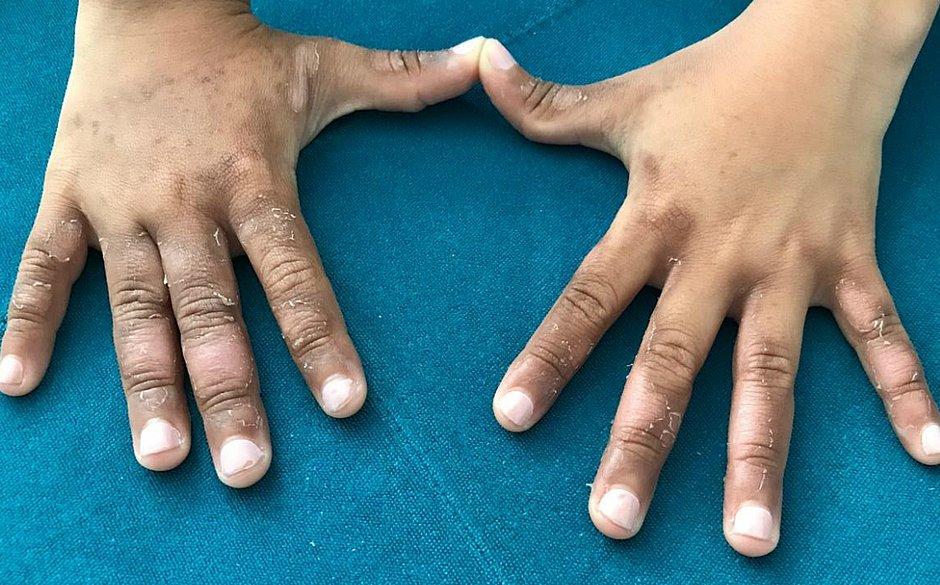 Mãos da menina de 8 anos seguem com manchas e descascando