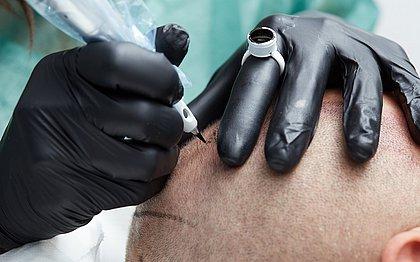 A micropigmentação é  um dos tratamentos indicados para a alopécia