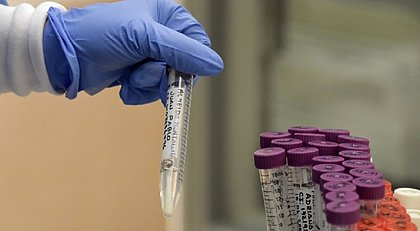 Dois casos de reinfecção por coronavírus são confirmados no Nordeste