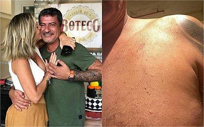 Tom Veiga descreve agressões que sofreu da ex-esposa: 'Tive que fugir de casa'