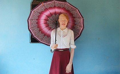 Veja histórias dos albinos que vivem na Ilha de Maré
