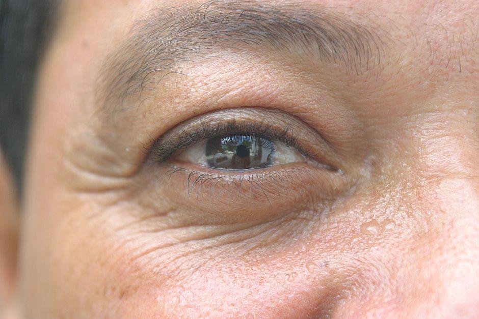 Olho seco: entenda por que as pessoas estão piscando cinco vezes menos