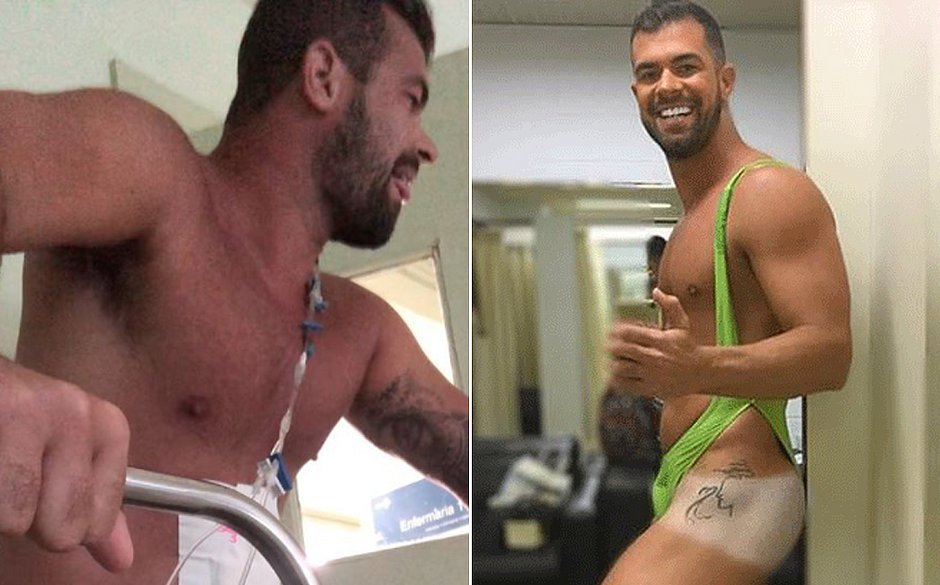 Após ser baleado, 'Borat do Amor e Sexo' posta vídeo no hospital