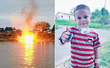 Garoto que teve corpo queimado em explosão de barco fará nova cirurgia