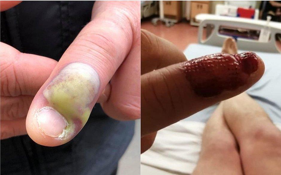 Homem contrai infecção mortal após roer unha e precisa fazer cirurgia às pressas
