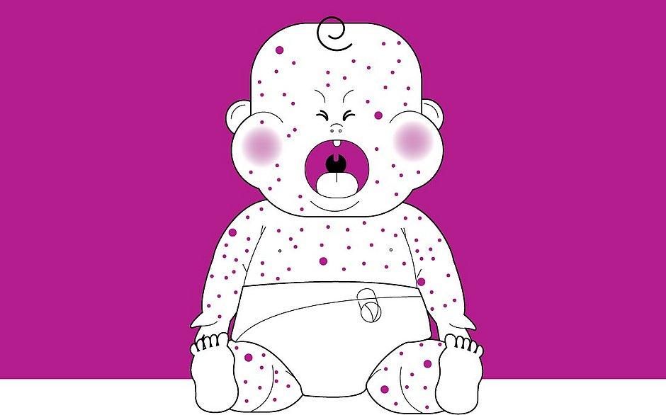 Sarampo: doença afeta bebês desde a barriga da mãe