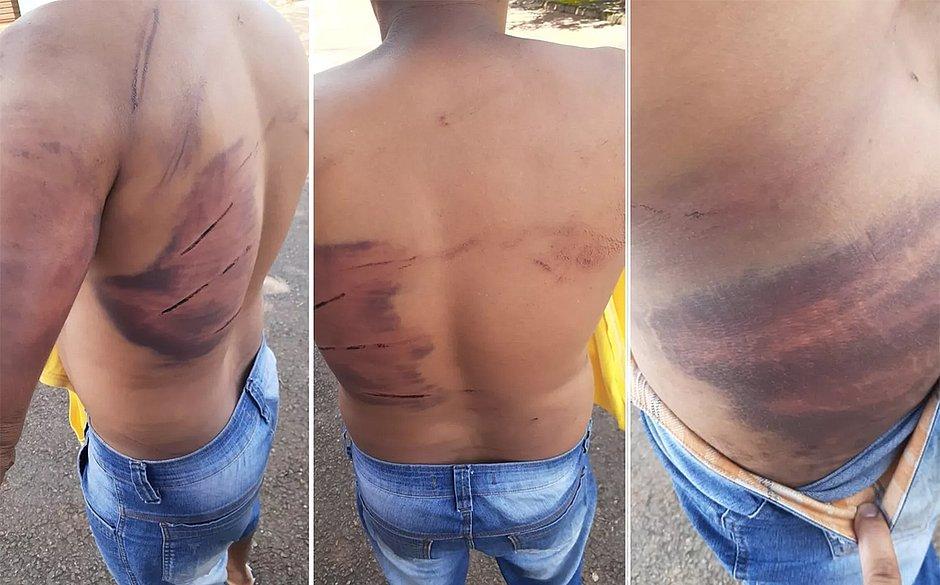 Homem ficou com o corpo cheio de hematomas após ser torturado