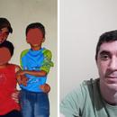 Portador de vitiligo, Gildásio na adolescência (esquerda) e depois já adulto (direita)