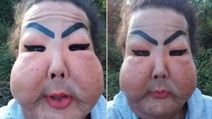 Trans chamada de Fofão diz que não vai retirar silicone do rosto