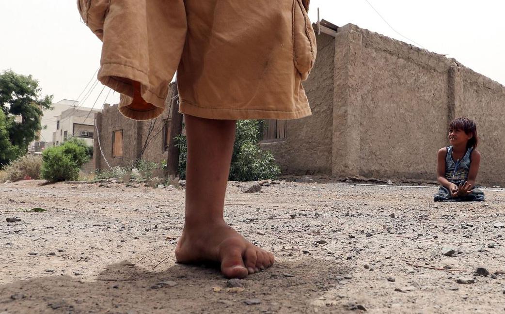 Crianças iemenitas cujas pernas foram amputadas depois que eles se feriram em minas terrestres na cidade de Áden.