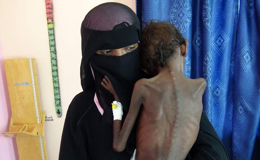 Nadia Nahari, do Iêmen, segura seu filho de cinco anos Abdelrahman Manhash, que sofre de desnutrição severa e peso 5 quilos, em uma clínica de tratamento no bairro Khokha na província ocidental de Hodeidah