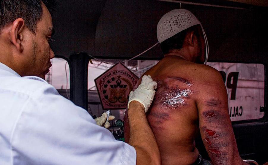 Um oficial médico de Sharia verifica os ferimentos de um homem que foi chicoteado em Lhokseumawe, na província de Aceh, por ter sido visto fazendo sexo com meninas menores de idade. O castigo foi de 100 chicotadas.