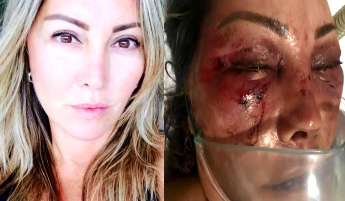 Resultado de imagem para Elaine Perez Caparroz, de 55 anos, sofreu fraturas no rosto e vai precisar de cirurgia reparadora.