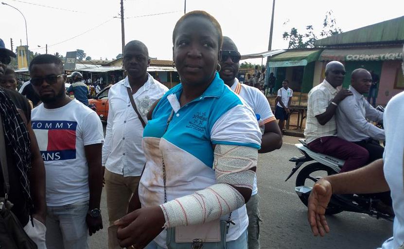 Professora alega ter sido atacada por homens encapuzados em Ahougnanssou, um bairro popular de Bouake, durante uma greve do ensino secundário, na Costa do Marfim.