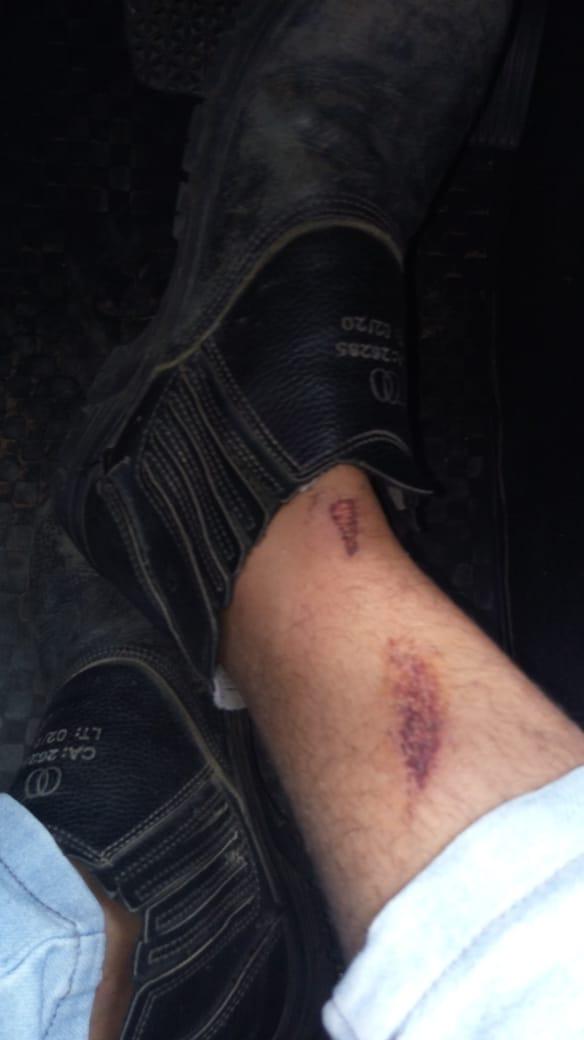 A canela do engenheiro Ricardo Macedo ficou ferida após a troca de garrafadas em Ribeira do Pombal
